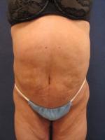 Circumferential Body Lift/ Belt Lipectomy