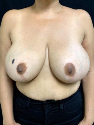 Explant Surgery